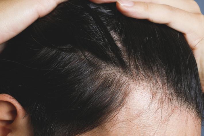 頭のM字部分(頭髪)
